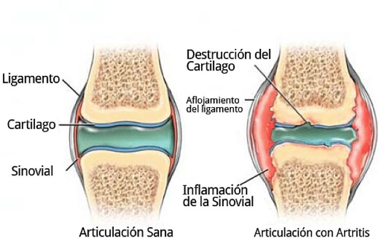 Imagen que ilustra el daño al cartílago y la inflamación causada por la artritis en las articulaciones
